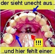 zunge stößt an zähne