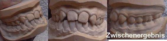 zähne nicht angelegt kindern